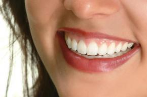 A closeup of a woman's smile