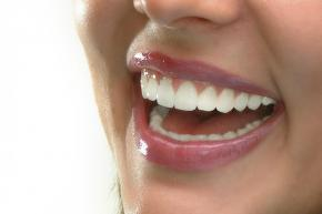 Visalia Dental Implants