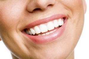 Woman smiling showing her healthy gums and teeth