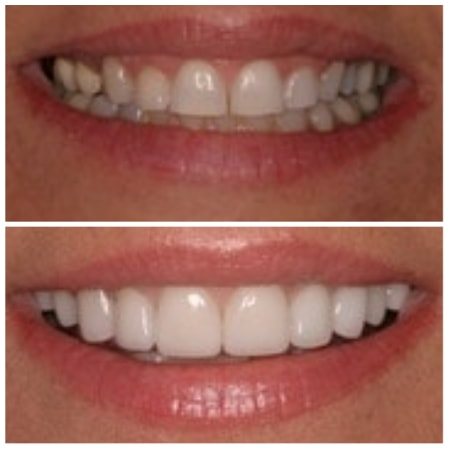 Before and after smile makeover, thanks to cosmetic dentistry in Visalia, CA