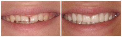 Actual before and after photo of porcelain veneers at our Visalia dental office