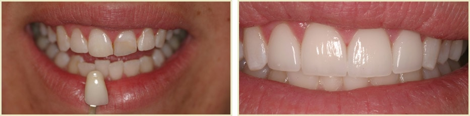 Smile gallery photo of an actual patient of our cosmetic dentist in Visalia, CA