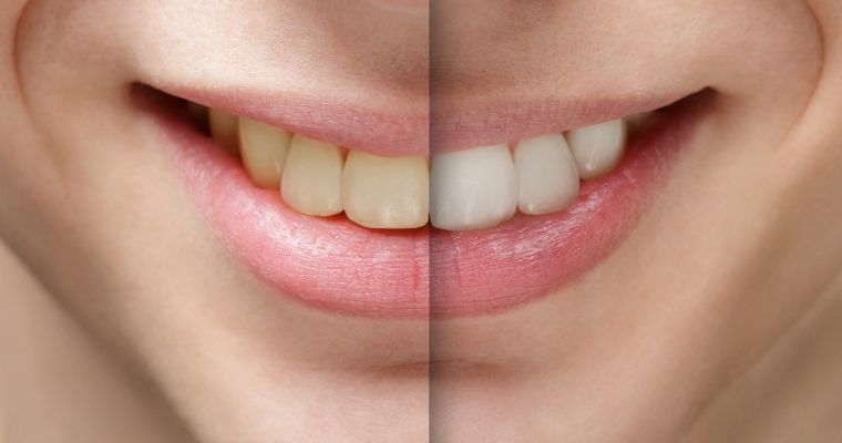 Yellow smile on left side, brighter and white smile on right side